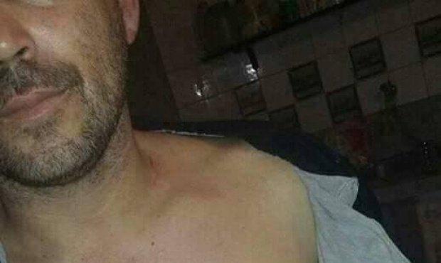 Un hombre denunció que fue golpeado cuando fue a pedir ayuda al intendente Serenal — Lincoln